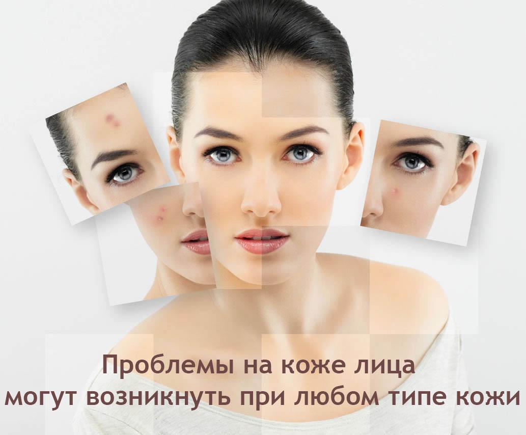 косметика для проблемной кожи